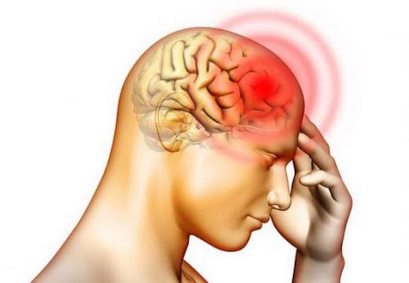 Các triệu chứng của bệnh thiếu máu não